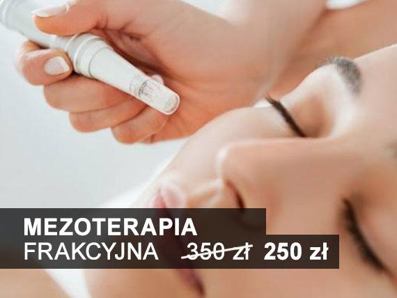 mezoterapia frakcyjna Toruń agprestige salon kosmetyczny