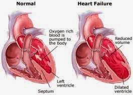 gagal jantung akut dan gagal jantung kronik