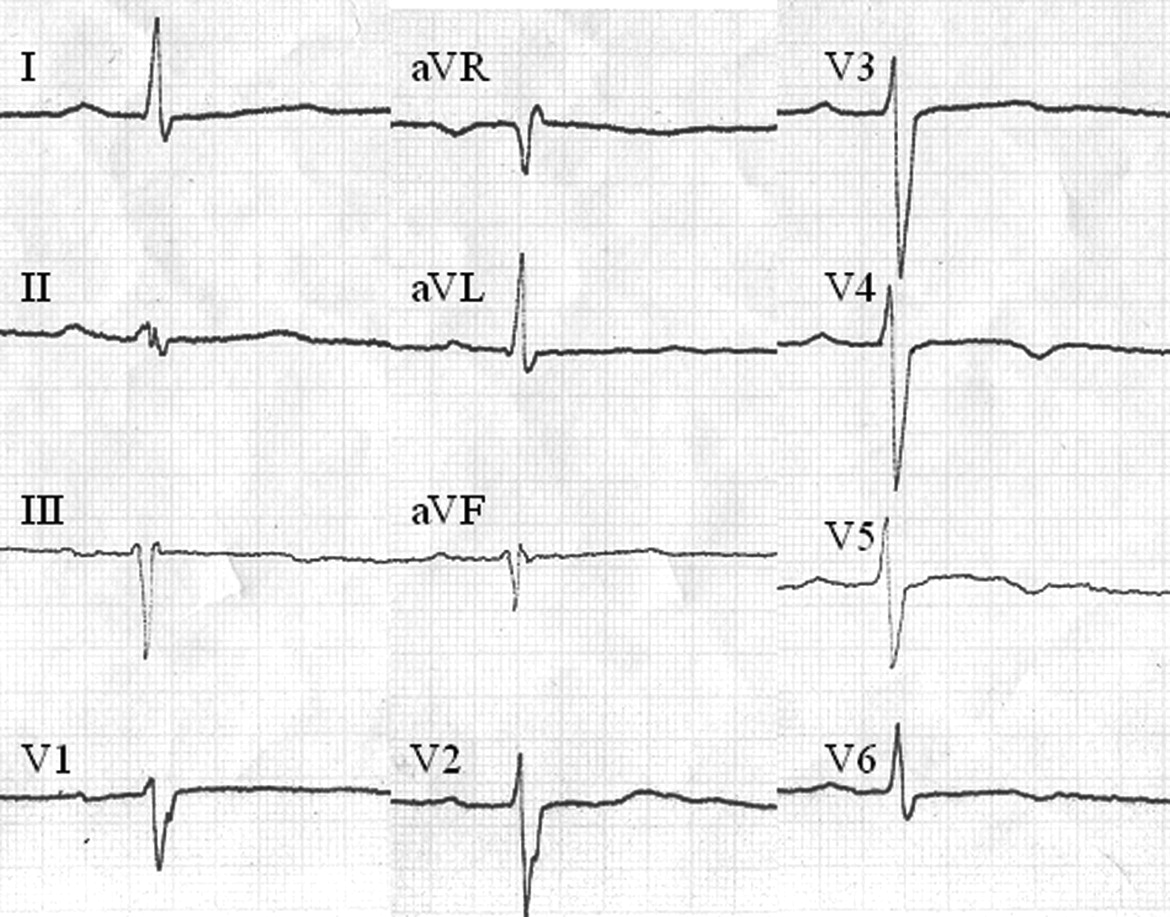 Prevalence And Prognostic Significance Of T Wave