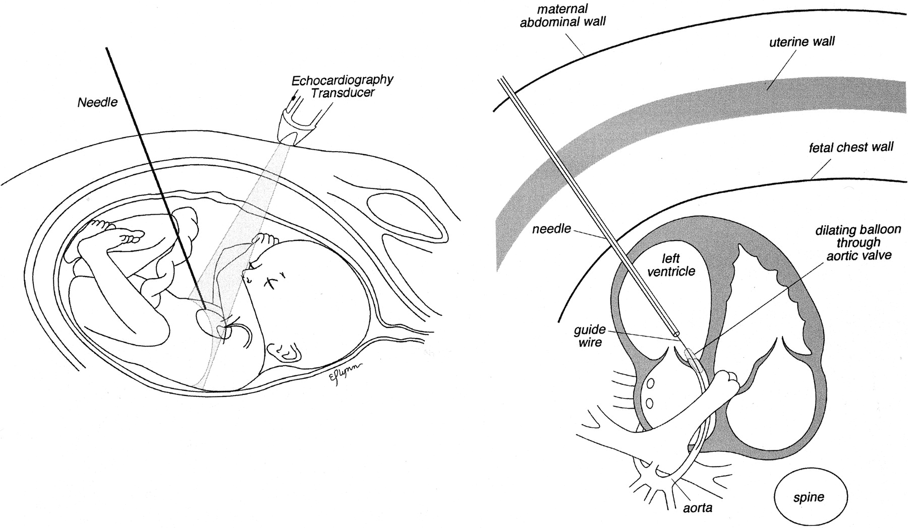 Balloon Dilation Of Severe Aortic Stenosis In The Fetus