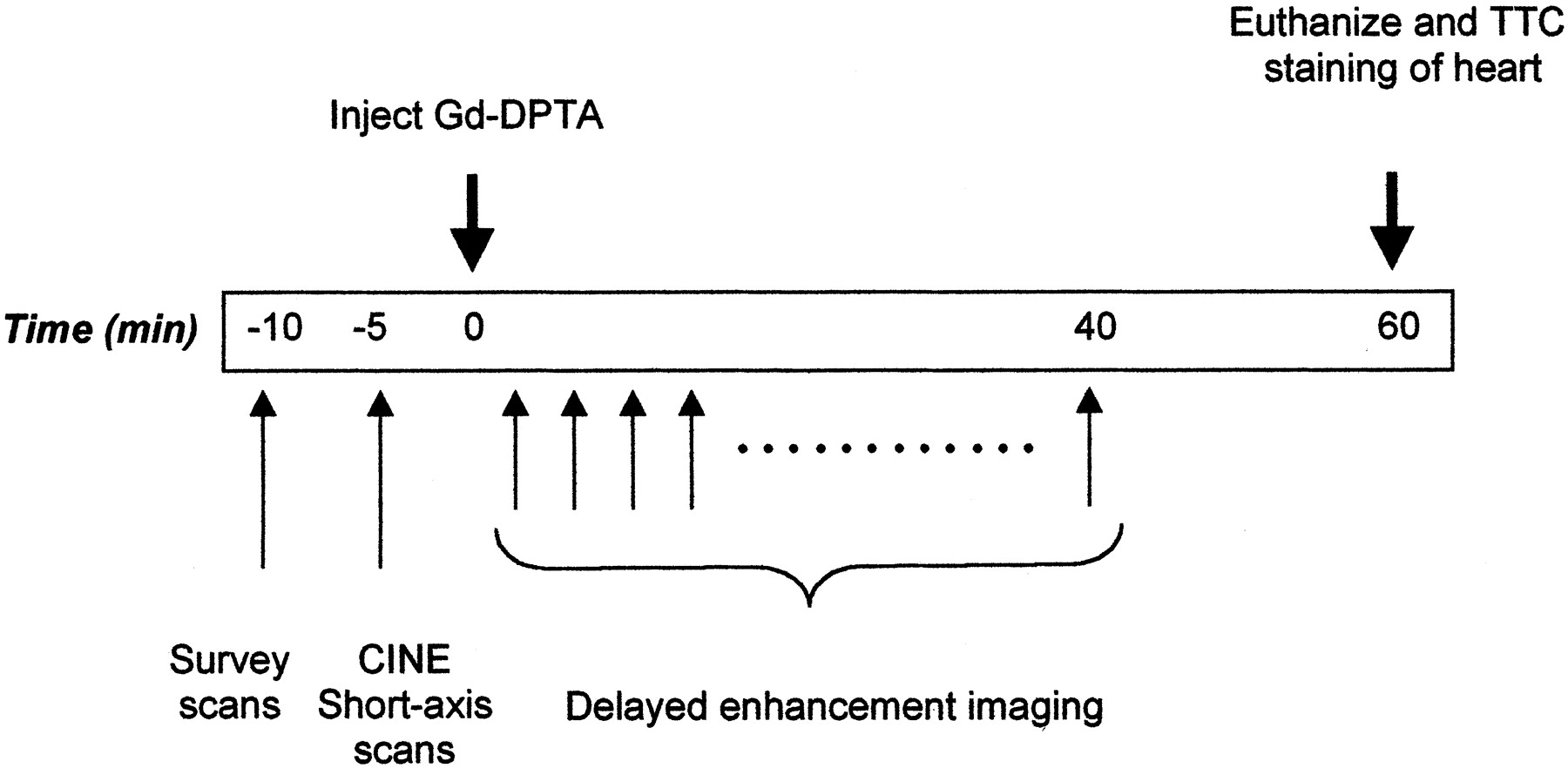 Imaging Time After Gd-DTPA Injection Is Critical in Using ...