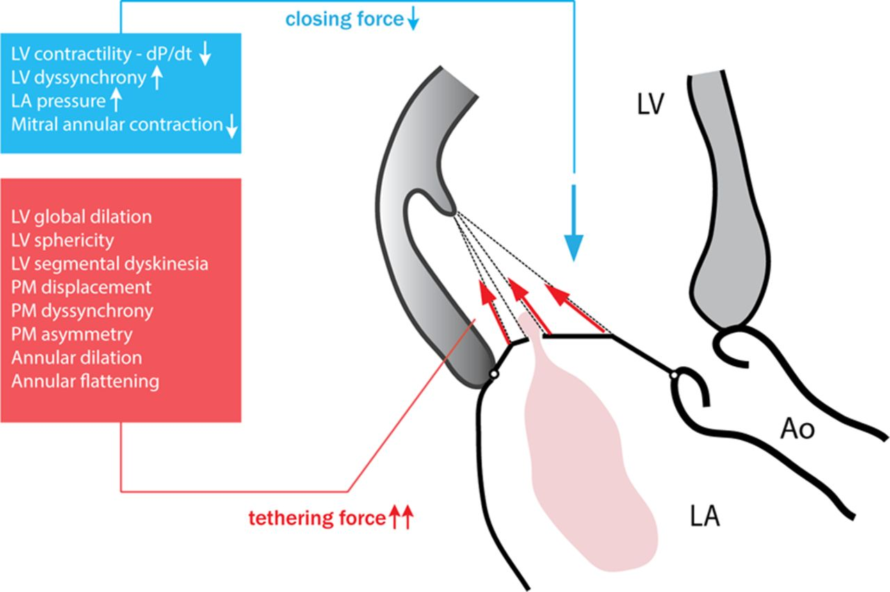 Exercise Dynamics in Secondary Mitral Regurgitation ...