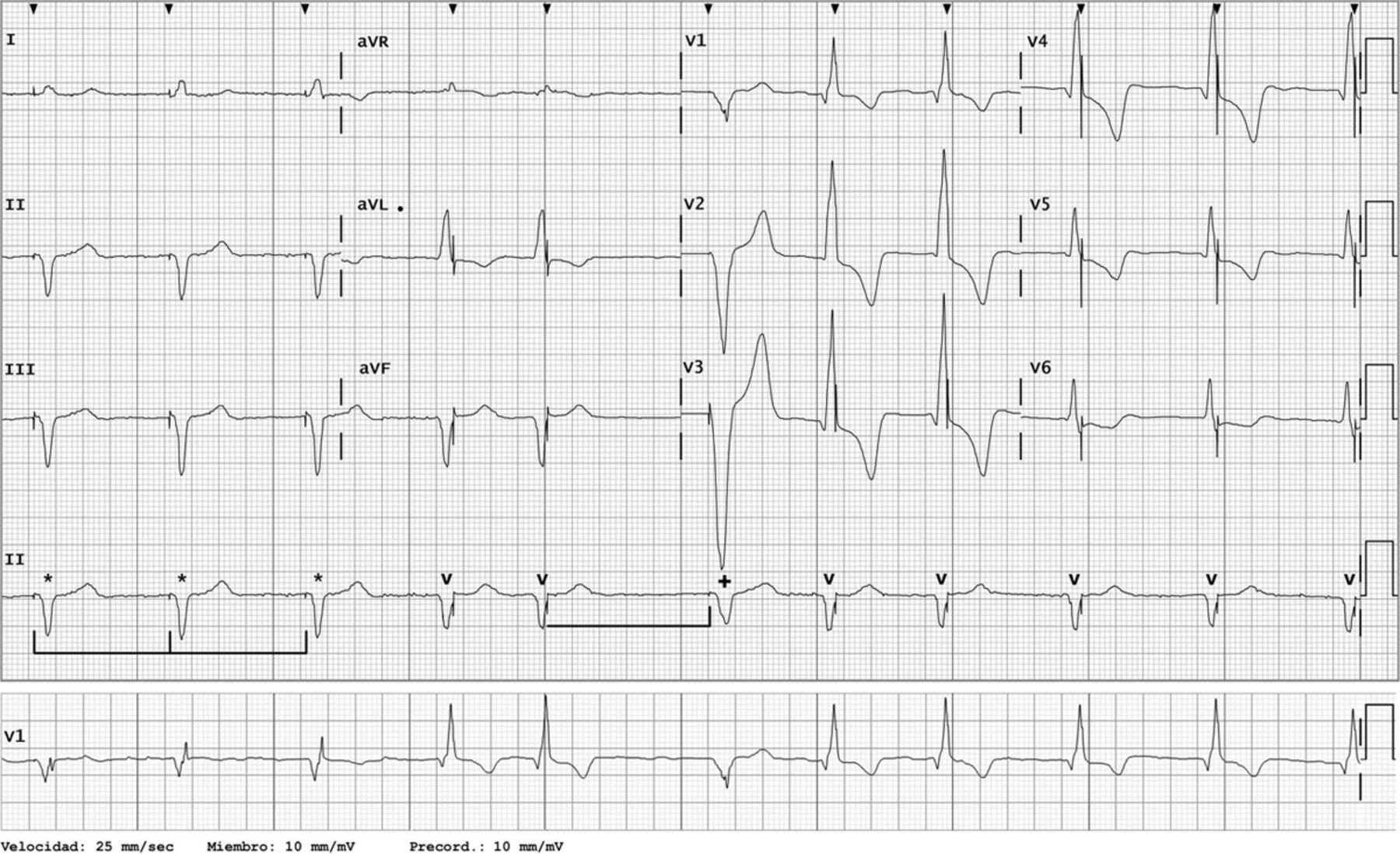 Is This Pacemaker Functioning Abnormally