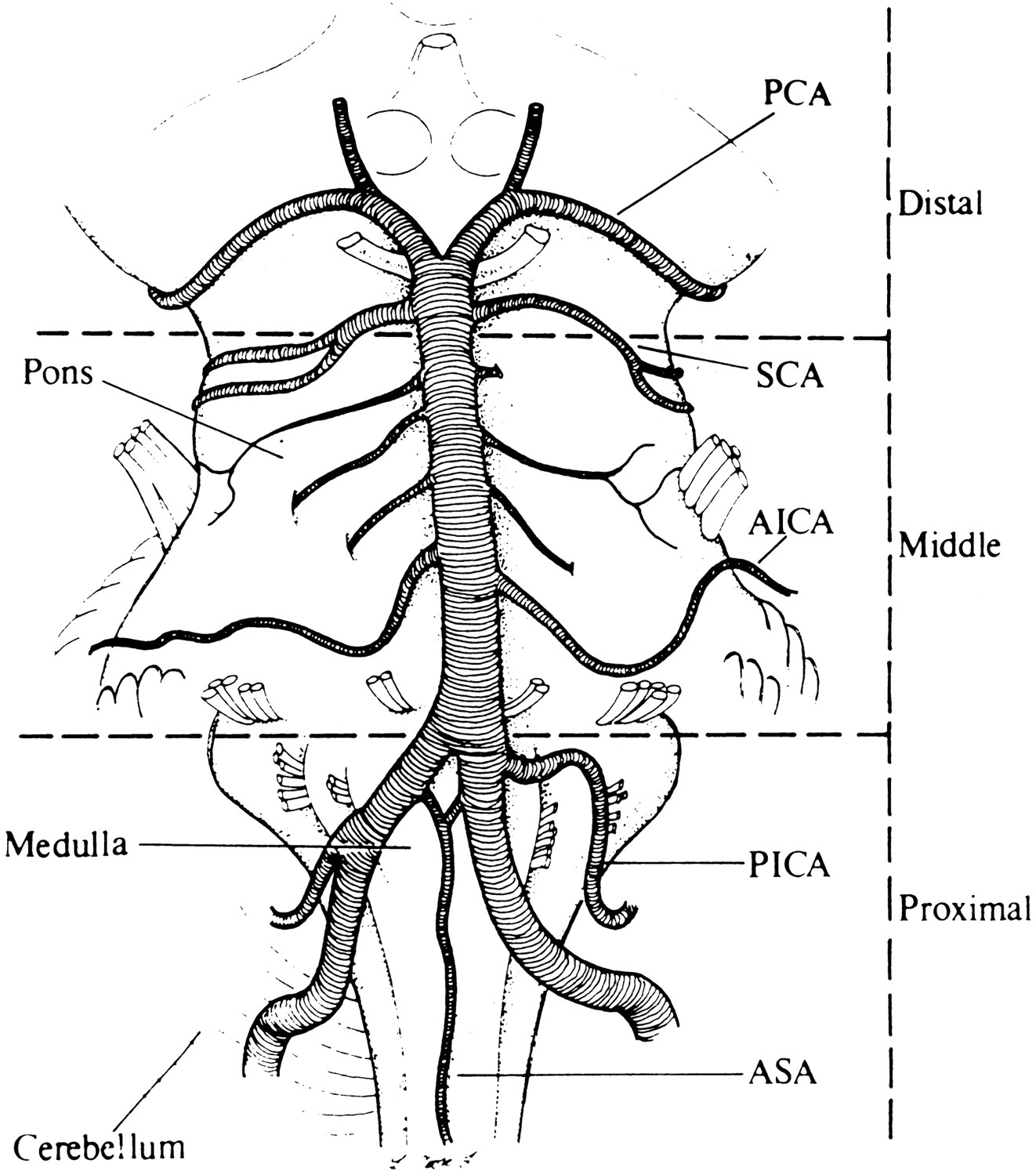 Posterior Circulation Ischemia Then Now And Tomorrow