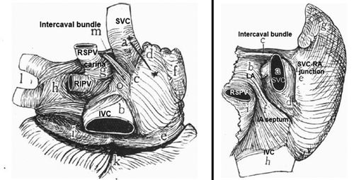 Electroanatomic Mapping of the Intercaval Bundle in Atrial