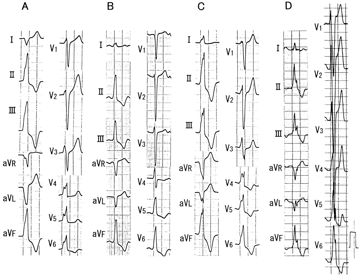 Localization Of Optimal Ablation Site Of Idiopathic Ventricular Tachycardia From Right And Left