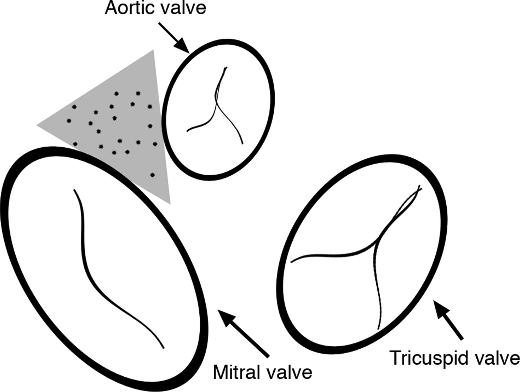 Ventricular Tachycardia Arising From The Aortomitral