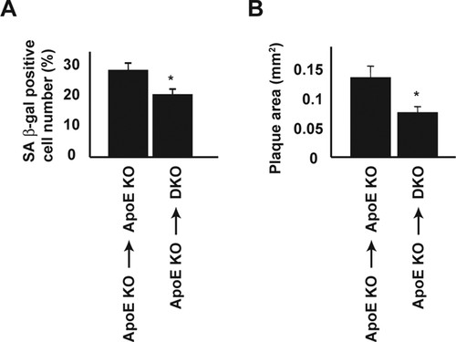 Angiotensin II Induces Premature Senescence of Vascular