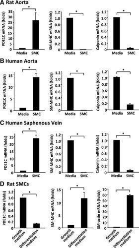 Role of cAMP-Phosphodiesterase 1C Signaling in Regulating