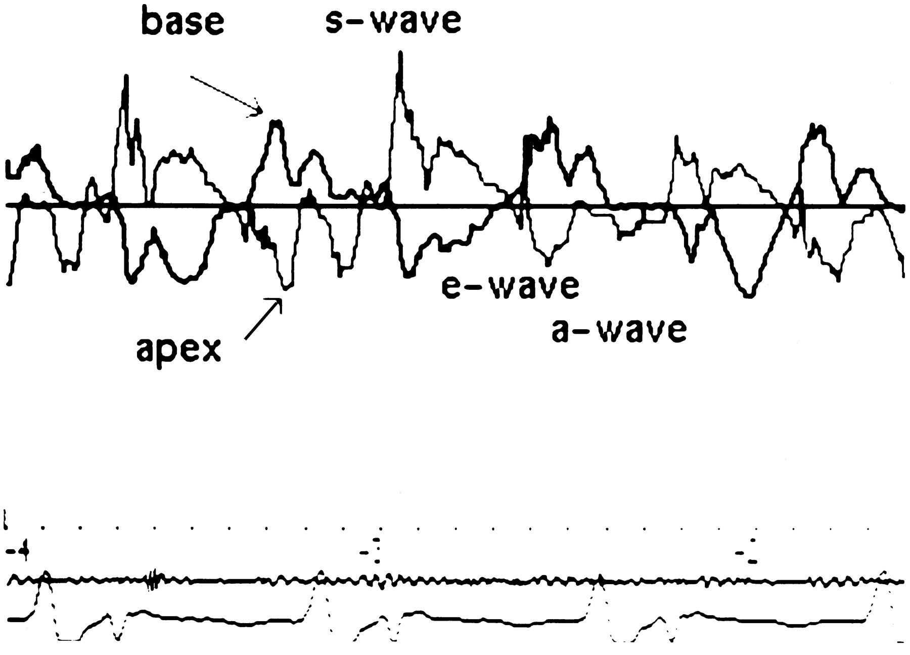Regional Wall Motion And Abnormalities Of Electrical