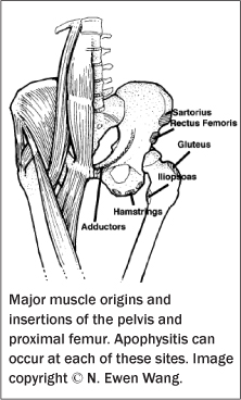 Common Overuse Injuries of the Pediatric Lower Extremity