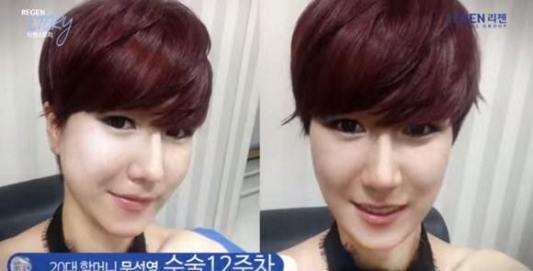 فتاة كورية قبيحة