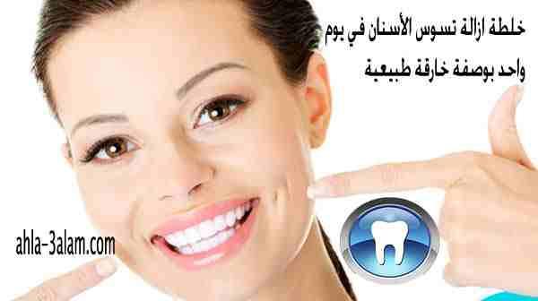 خلطة ازالة تسوس الأسنان وتبييضها في يوم واحد بوصفة خارقة طبيعية