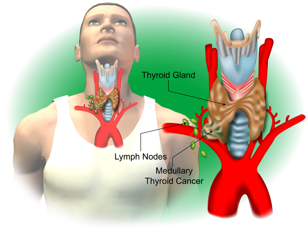 Thyroid d