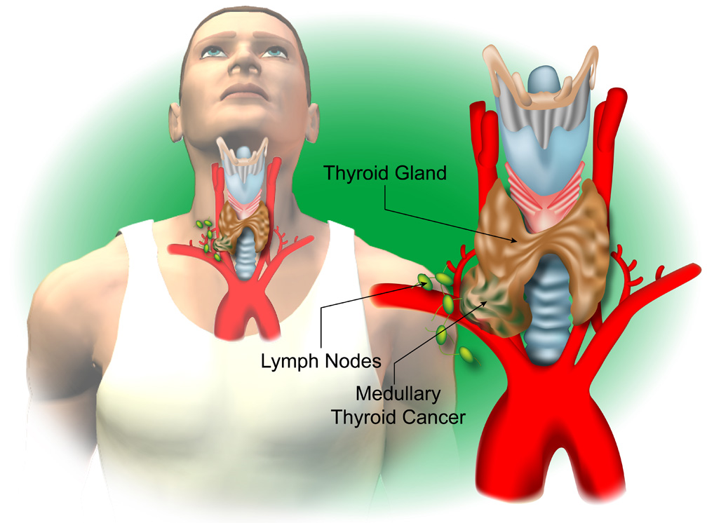 Thyroid p