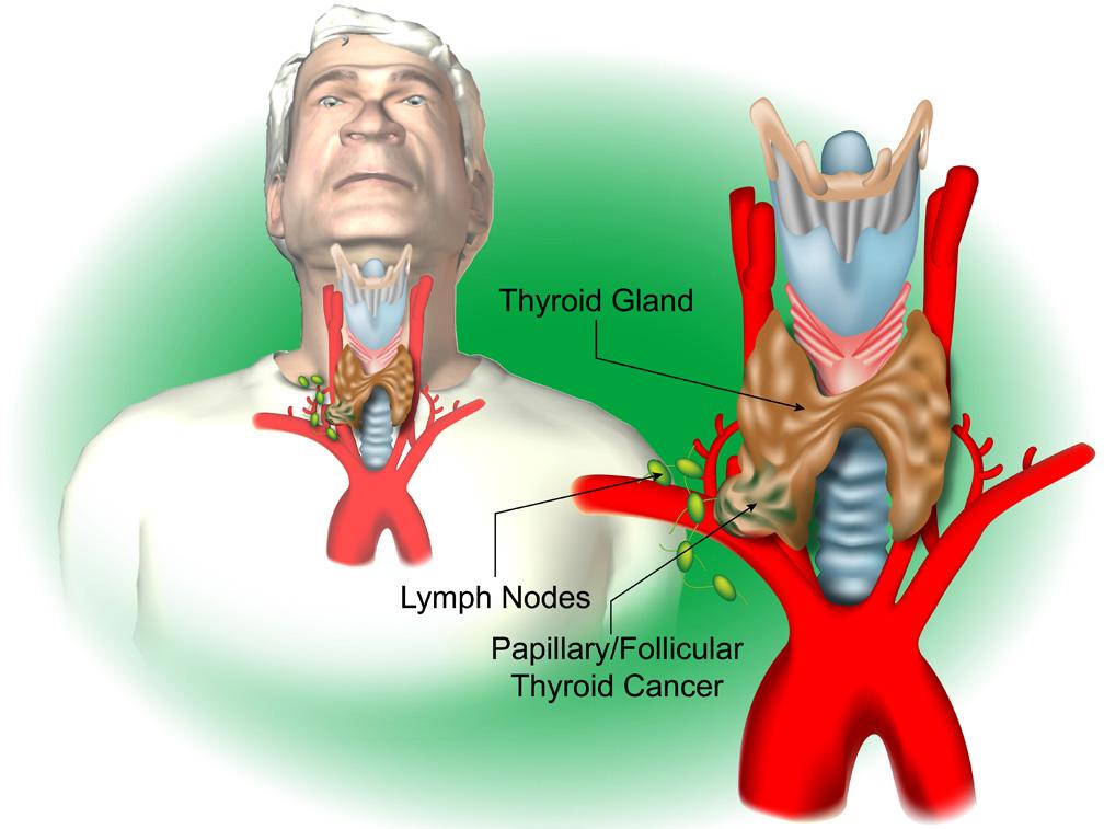 Thyroid S3