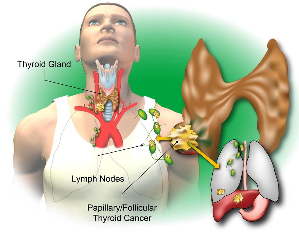 Understanding Thyroid Cancer