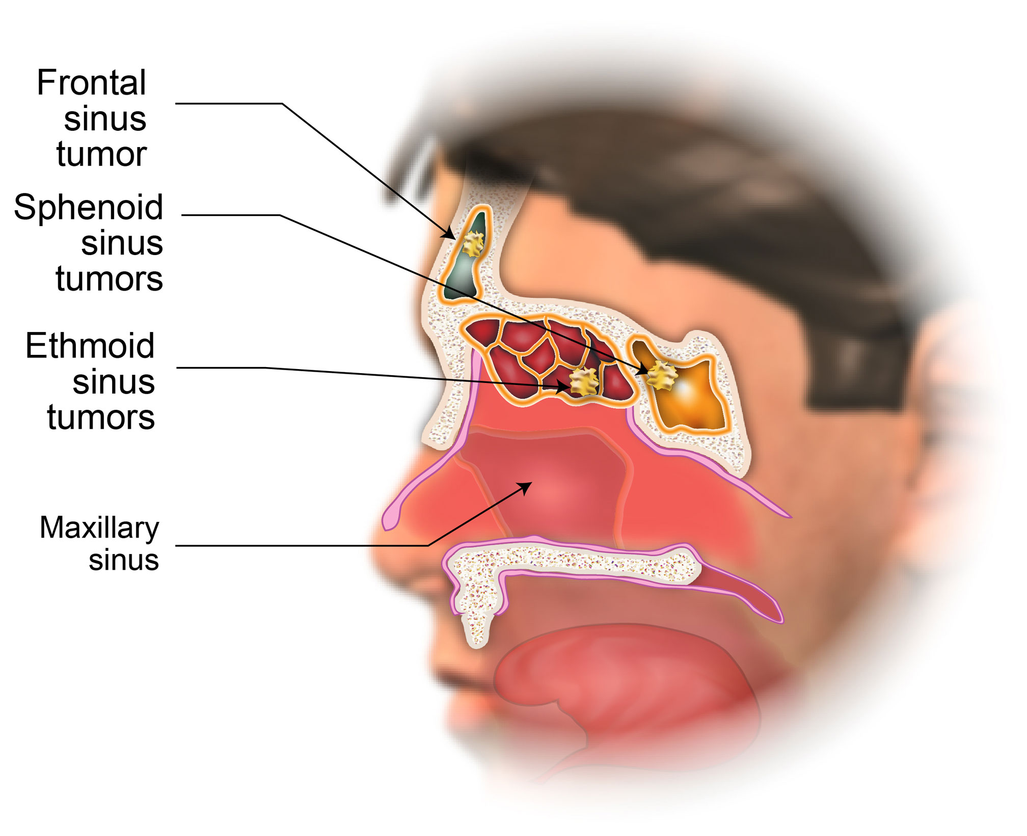 Treatment Of Nasal Cavity And Paranasal Sinus Cancer American Head