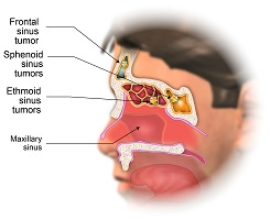 Ethmoid, sphenoid, and frontal sinuses