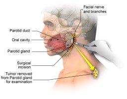 Incisional Biopsy