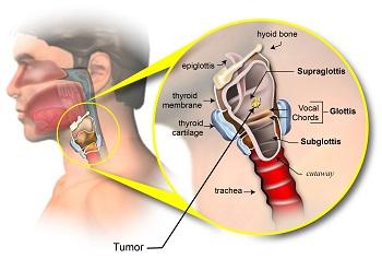 Supraglottis