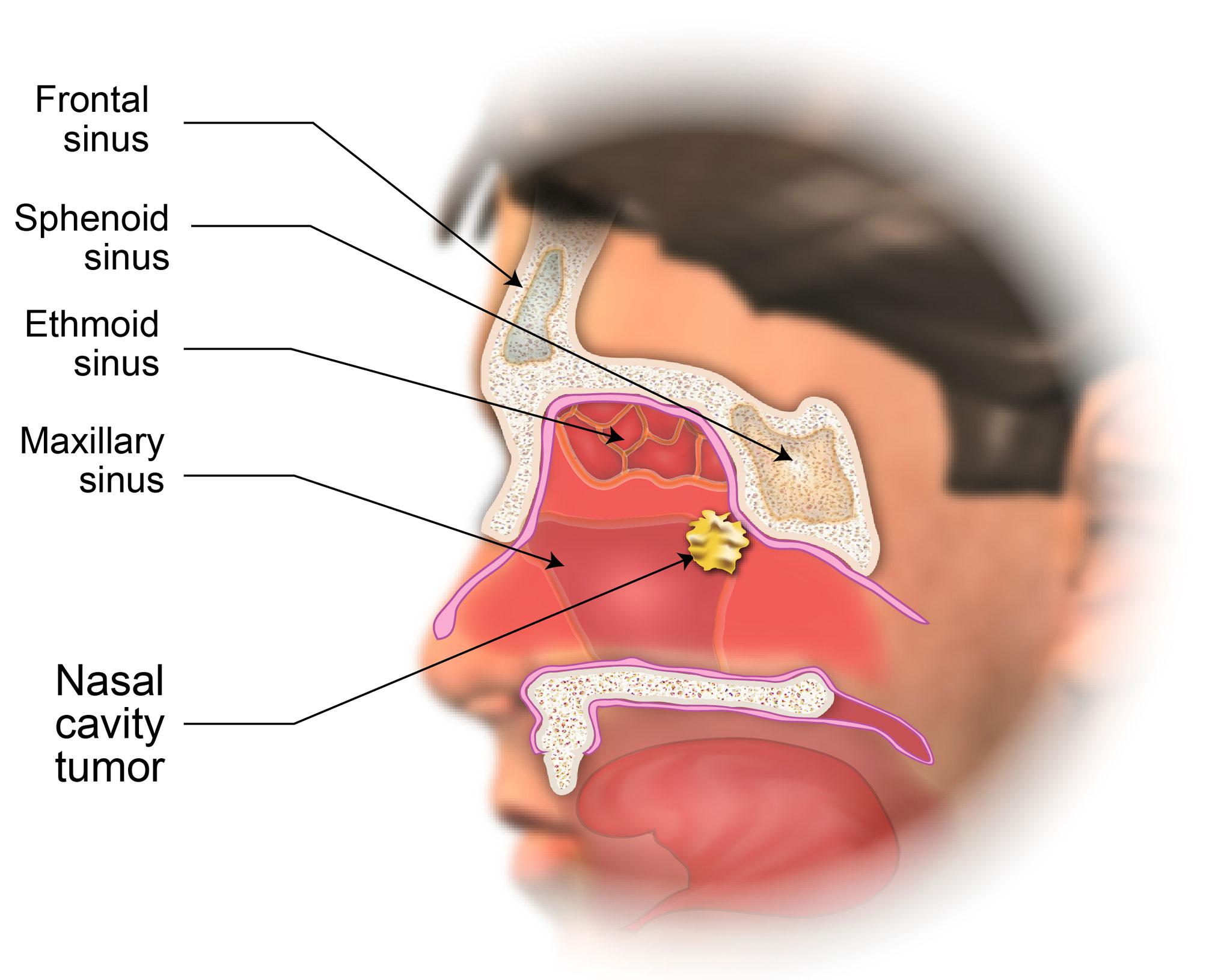 Treatment Of Nasal Cavity And Paranasal Sinus Cancer American Head