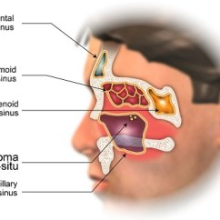 Skin Cross Section Diagram 2003 Honda Civic Hybrid Wiring Staging Of Nasal Cavity And Paranasal Sinus Cancer - American Head & Neck Society