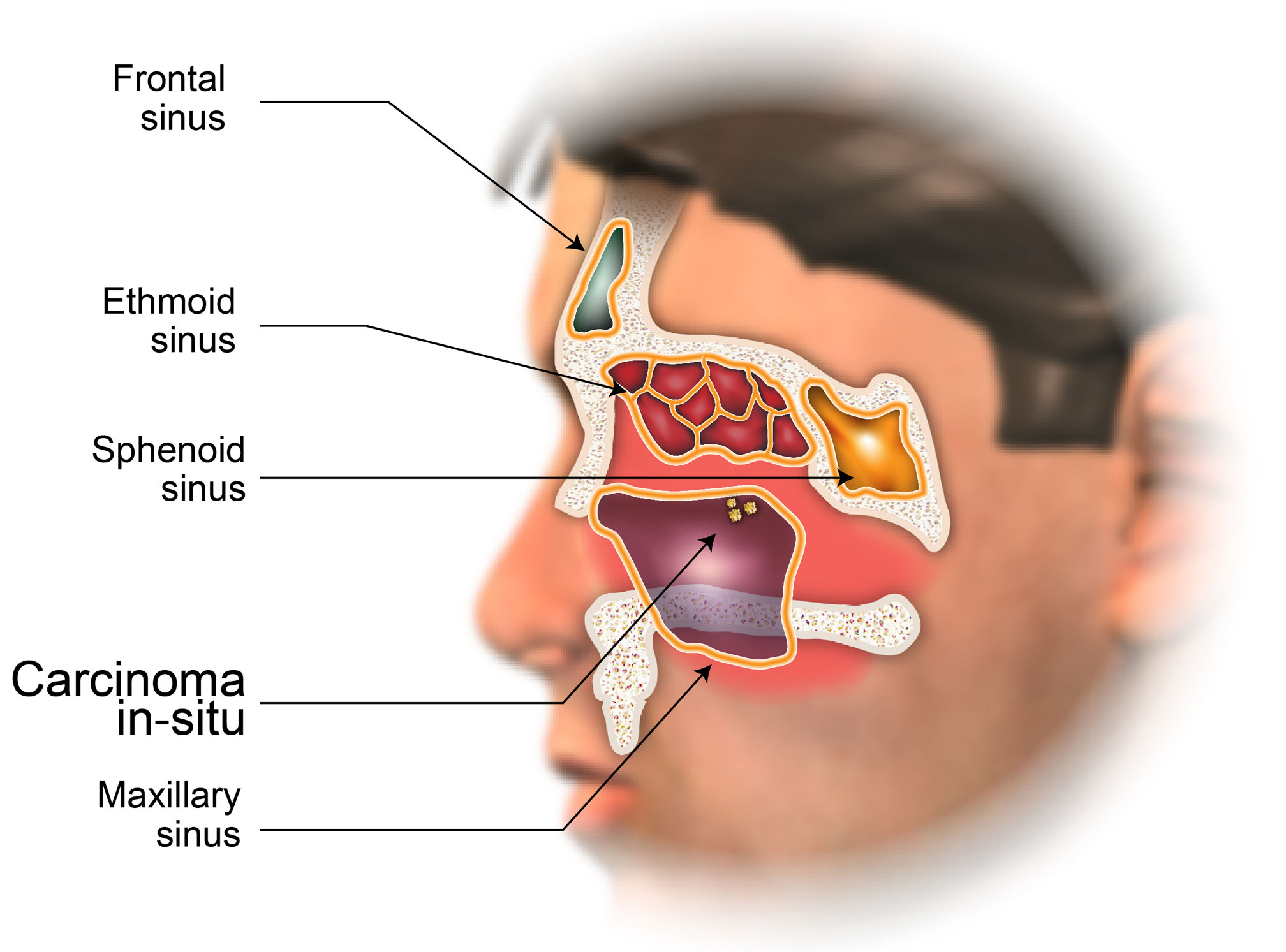 Staging Of Nasal Cavity And Paranasal Sinus Cancer American Head