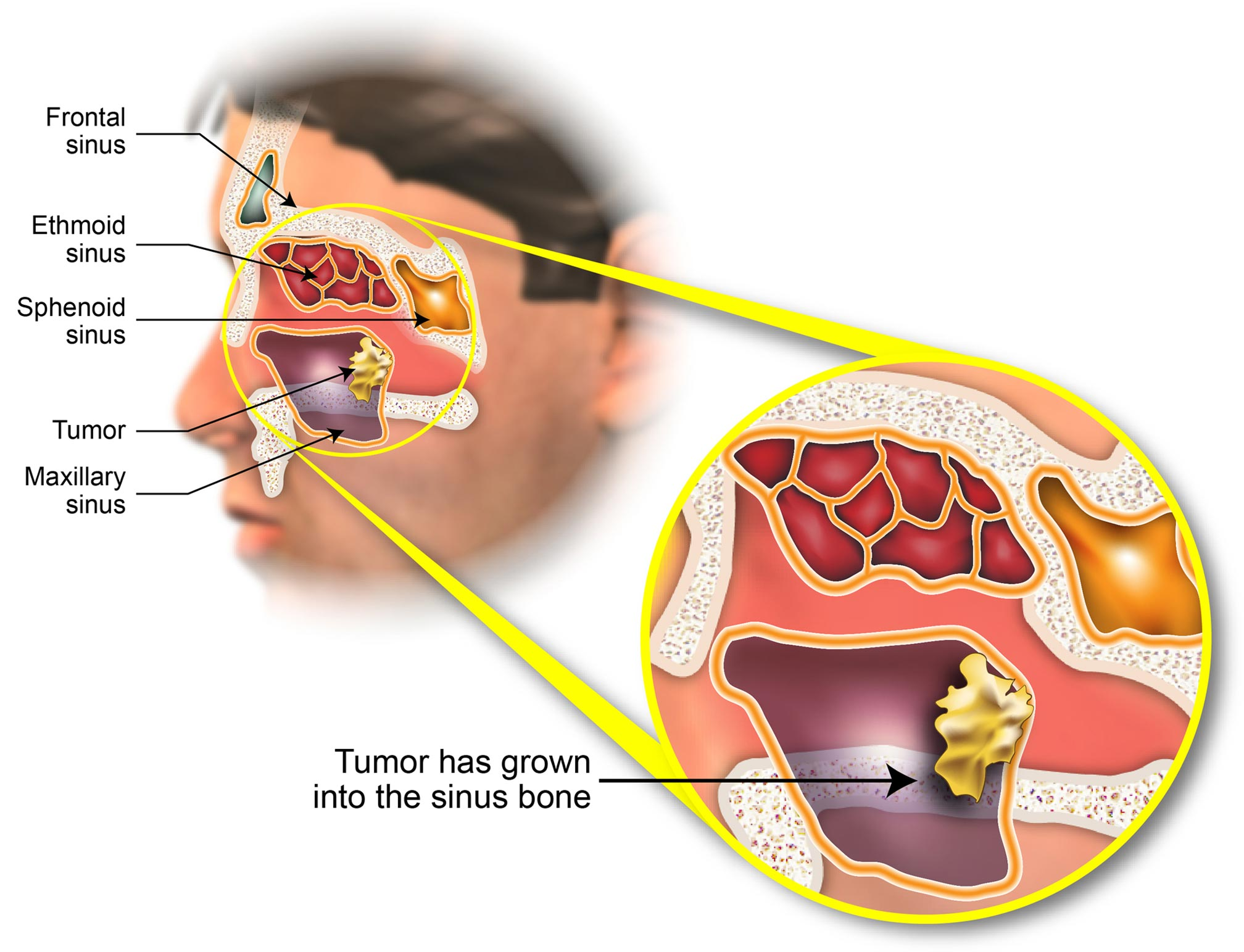 Advances in Nasal Cavity and Paranasal Sinus Cancer Treatment forecasting