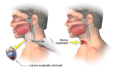 Total laryngectomy