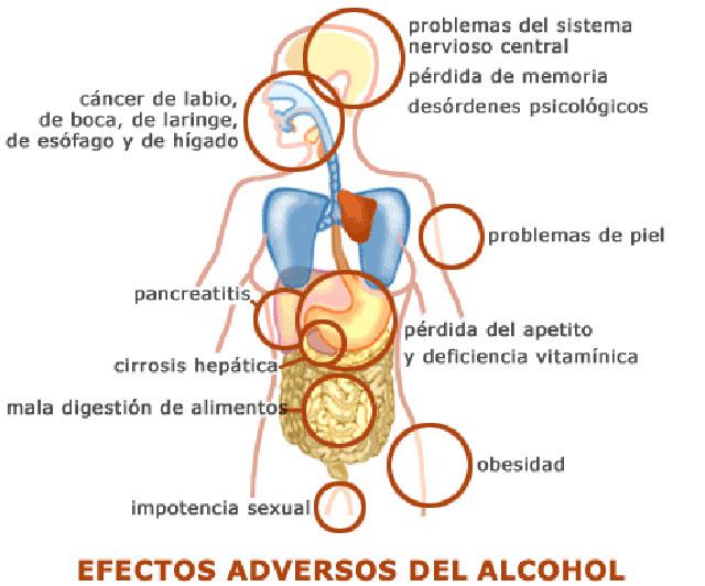alcolismo-1.jpg