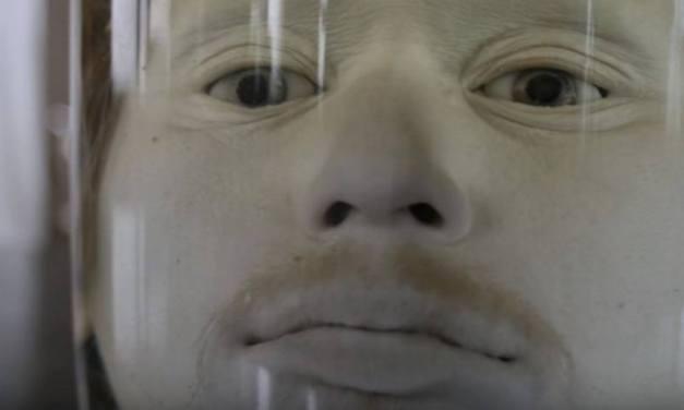 Conheça a história do serial killer cuja cabeça está exposta em uma faculdade de medicina