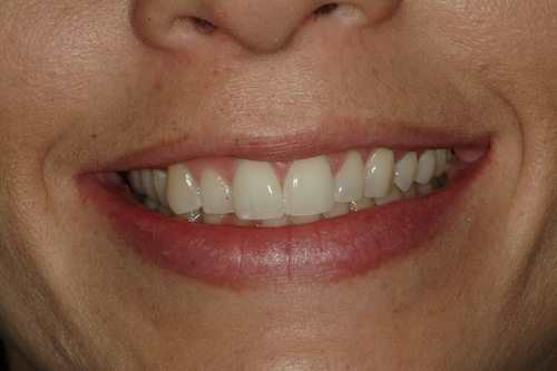 Veneers Before Image