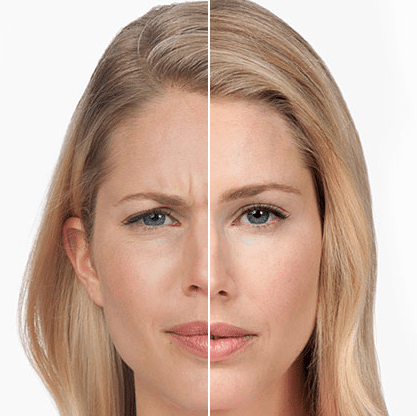 Botox fillers for frown lines in Arlington Heights IL