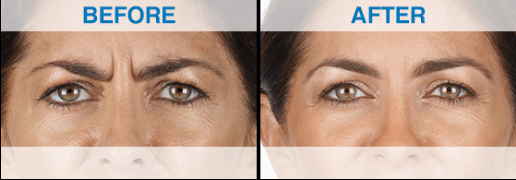 Xeomin Botox for treatment of frown lines before and after