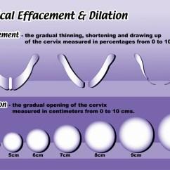 Diagram Of Artificial Eye Antecubital Fossa Dilation - Meddic