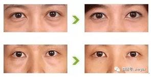 科普:如何輕松消除假性眼袋 - 診療內容 - 愛爾眼科官網 愛爾眼科醫院連鎖集團 共享全球眼科智慧