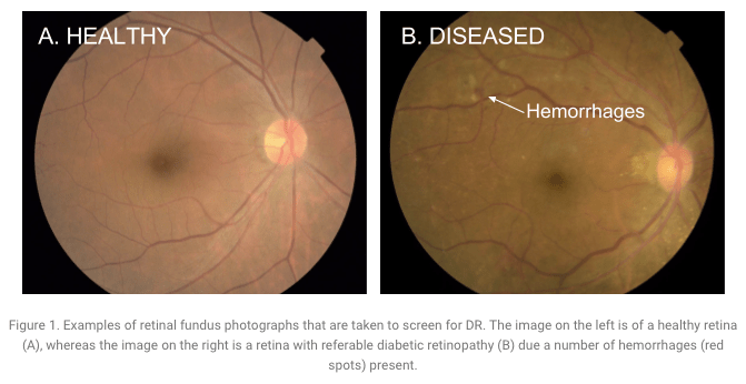 Deep Learning Detection of Diabetic Eye Disease
