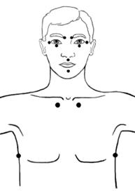 Stimolazione manuale degli agopunti nel trattamento dei