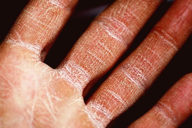 Types-of-Eczema