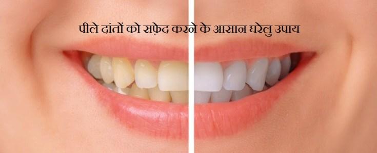 Daant Safed Karne Ke Nuskhe, Danton ka Peelapan Door Karne ke Upay, Gharelu Nuskhe for Teeth Whitening in Hindi, Gharelu Nuskhe for White Teeth in Hindi,