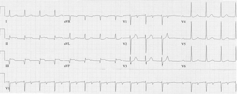 Chest Pain, Heart Murmur, and Changing Electrocardiograms
