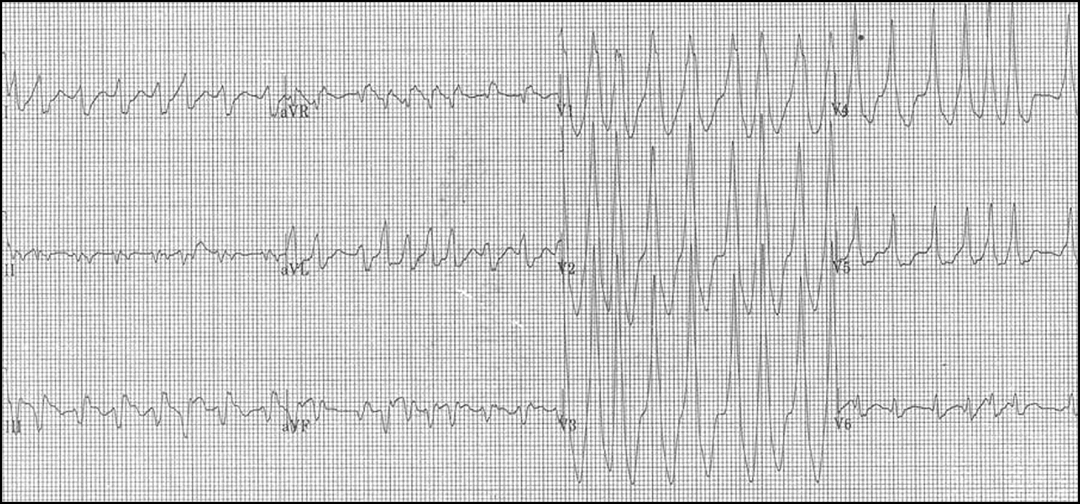 Atrial Fibrillation In The Wolff Parkinson White Syndrome Ecg Recognition And Treatment In The