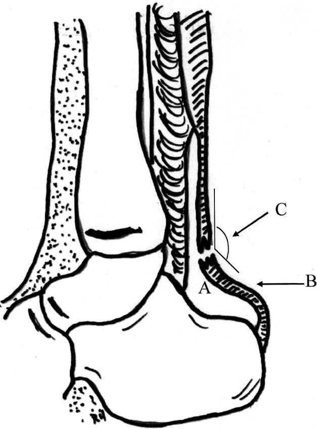 Orthopedic pitfalls in the ED: Achilles tendon rupture
