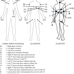12 Lead Ekg Placement Diagram Cb Radio Wiring Derivation Of The Electrocardiogram And 3
