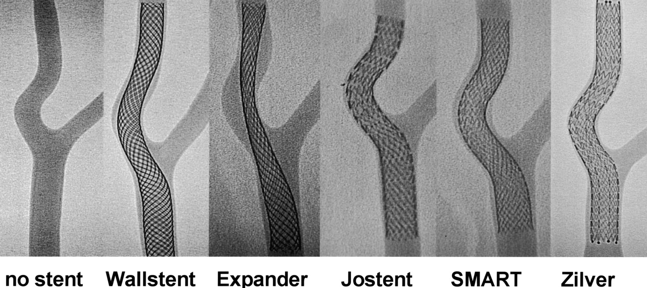 Conformity Of Carotid Stents With Vascular Anatomy