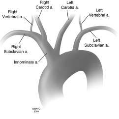 Carotid Artery Diagram The Function And Parts Of Brain Labeled Bovine Aortic Arch Variant In Humans Clarification A