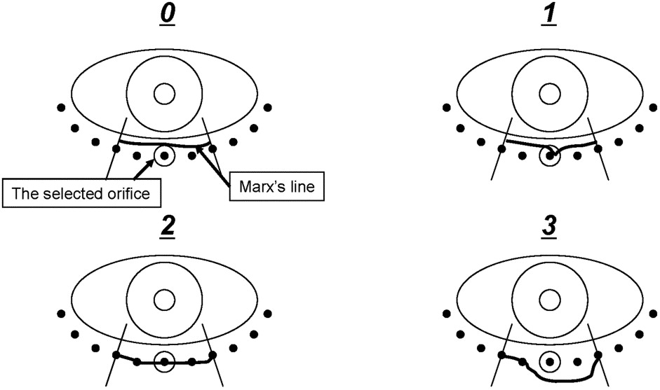 Marx Line: Fluorescein Staining Line on the Inner Lid as