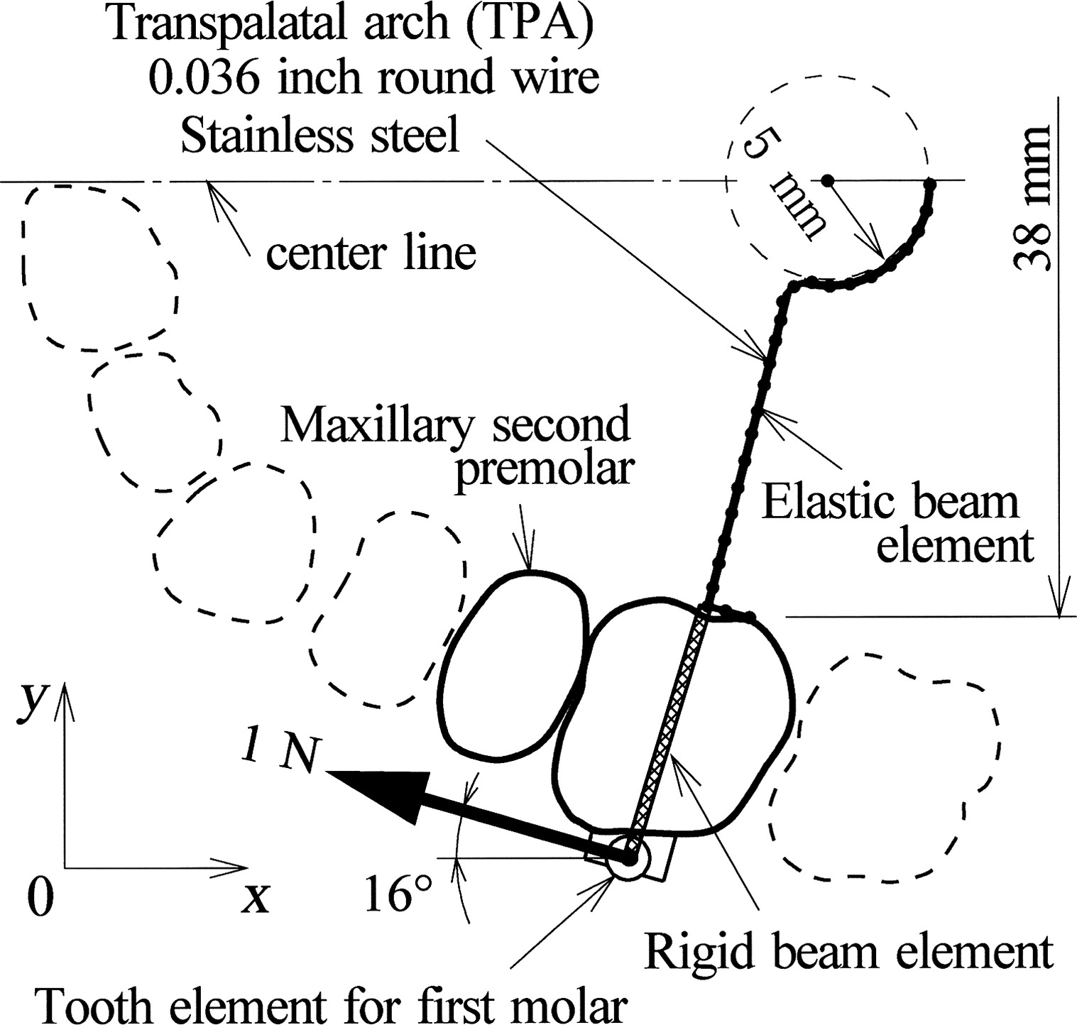 Effects of transpalatal arch on molar movement produced by