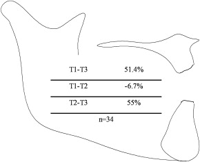 Dental and skeletal changes associated with Class II